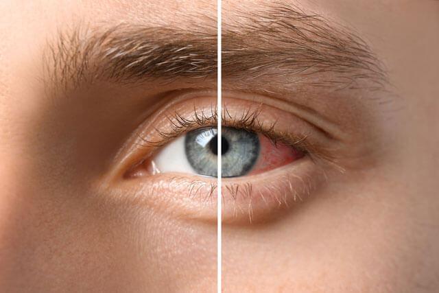 come proteggere occhi luce blu emessa smartphone TV PC tablet